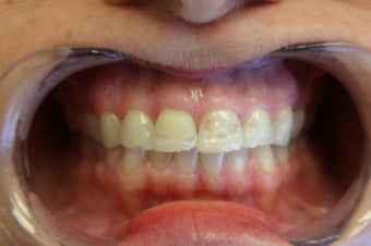 porcelain veneers before 359266