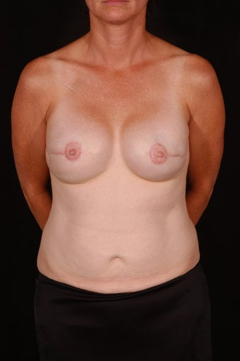Breast Reconstruction after 164813