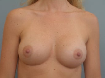 Complex Revisionary Breast Surgery-implant exhange after deflation after 339525