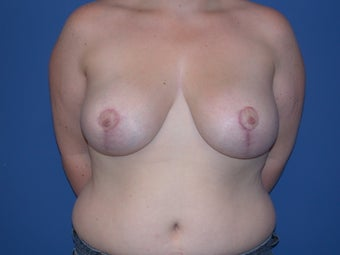 Breast reduction after 197338