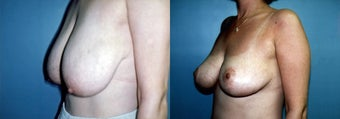 Breast Reduction & Mammoplasty before 352703