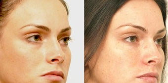 Non Surgical Liquid Eyelid Lift after 619696