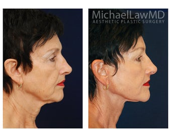 Facial Rejuvenation 395250