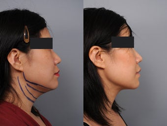 Smartlipo of the neck with Radiesse in the Mid-face before 210768
