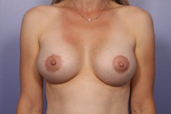 Breast Lift / Breast Augmentation after 291167