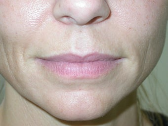 Filler -lip augmentation and smile line treatment before 114665
