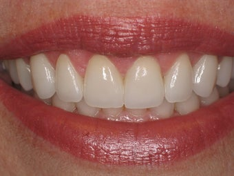 Gingival recontouring, Porcelain Veneers 510812
