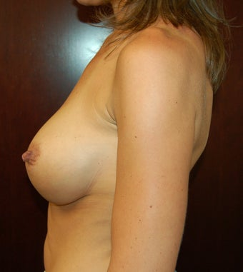 Breast augmentation - Submuscular and Inframammary incision after 301288
