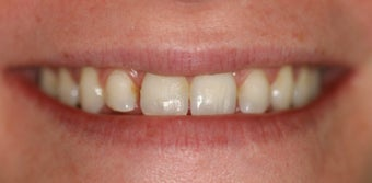 Orthodontics, all porcelain veneers before 503128