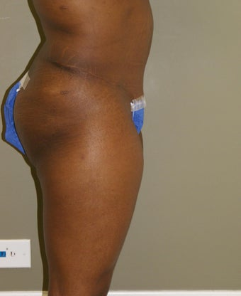 Abdominoplasty 593895