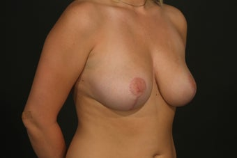 Breast Reduction after 287713