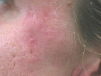 Acne/Acne Scars Treatment with Smoothbeam after 272005