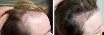 Female medical treatment for hair loss (no surgery) before 369186