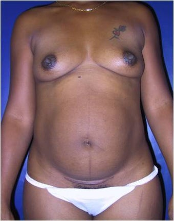 Breast augmentation tummy tuck before 378895