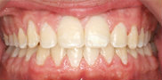 Two-Phase Orthodontic Treatment 344259
