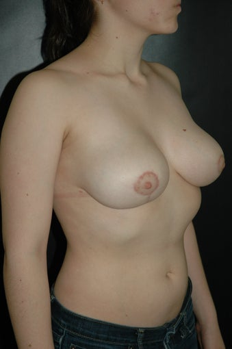 Breast Reduction after 168113