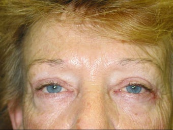Upper and Lower Lid Blepharoplasty after 147720