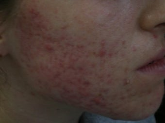 Acne Scars with Laser Resurfacing before 272021