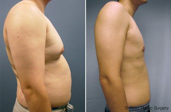 Gynecomastia and Liposuction before 146922