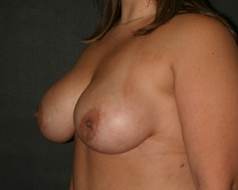Breast Augmentation after 283500