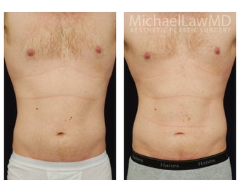 Liposuction before 392463