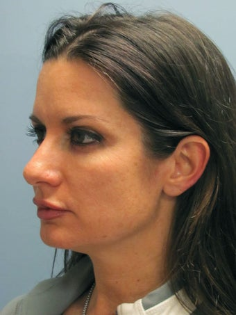 Neck Lift, Platysmaplasty 634730
