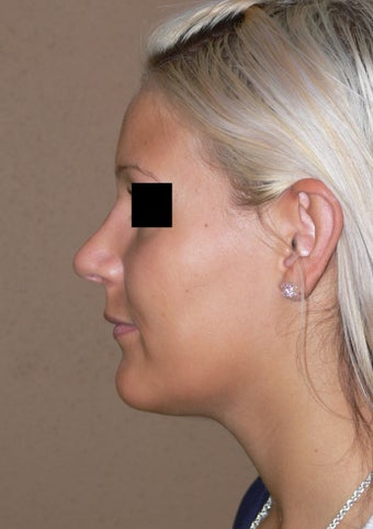 Nose job - rhinoplasty after 595266