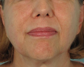 Ultherapy after 414781