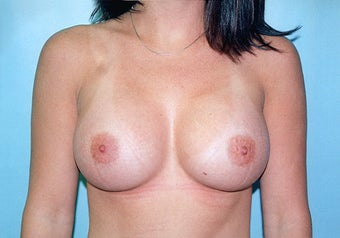 Breast Augmentation (425cc Saline Implants) before 238383
