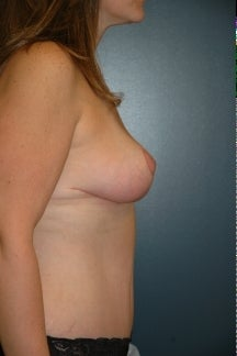 Breast Lift and tummy tuck after 255703