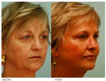Fat Grafting and Facial Rejuvenation before 136353
