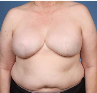 Breast Reconstruction after 539979