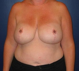 Breast reduction after 109949