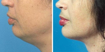 Chin Liposuction before 640672