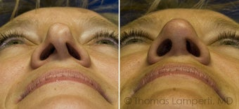 Revision Rhinoplasty with ear cartilage grafting before 233189