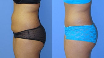 Abdominoplasty 524127
