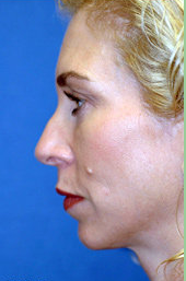 Chin Implant and Rhinoplasty before 324981