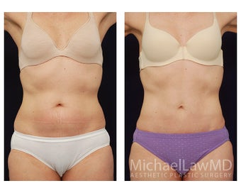 Abdominoplasty - Tummy Tuck before 396048
