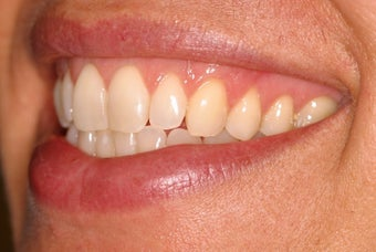 Invisalign after 119943