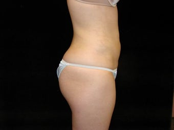 Liposuction 159256