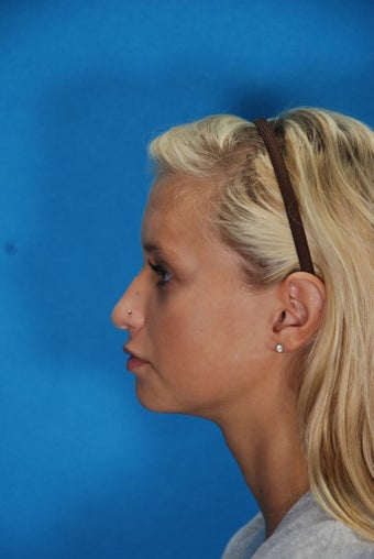 Rhinoplasty (nose job, nasal surgery) 368135