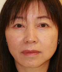 blepharoplasty (eyelids) after 219349