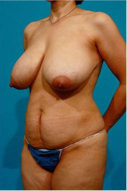 Tummy Tuck and Breast Reduction 73740