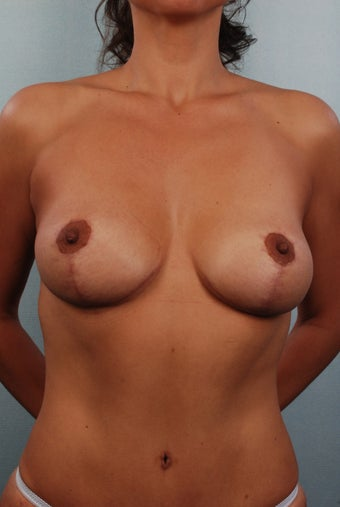 Mastopexy/Lift after 240826
