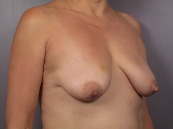 Breast Lift / Breast Augmentation   before 291145