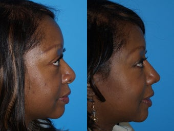 Ethnic Rhinoplasty before 640411