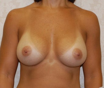 Breast Augmentation after 227950