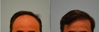 Hair Transplant before 315419
