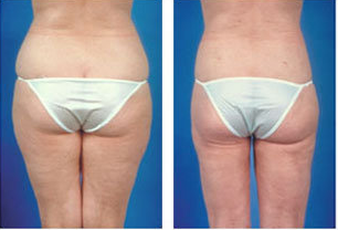 Liposuction of stomach, hips and thighs, age 36 after 6788