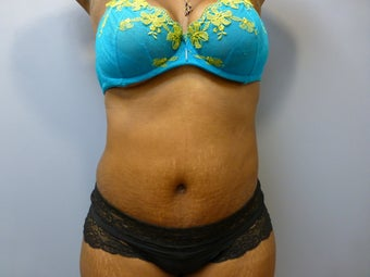 Tummy tuck and liposuction after 625576